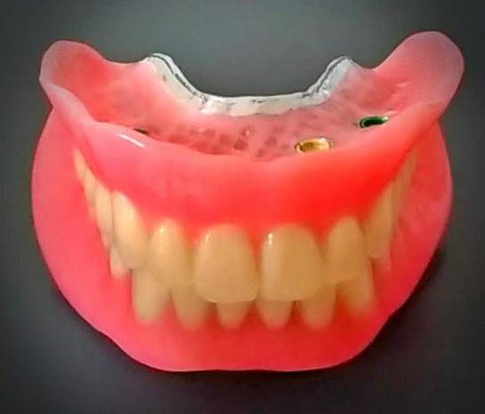 Locator Implant Supported Dentures Procare Denture