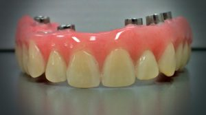 ProCare Denture All on 6 Fixed Hybrid Denture